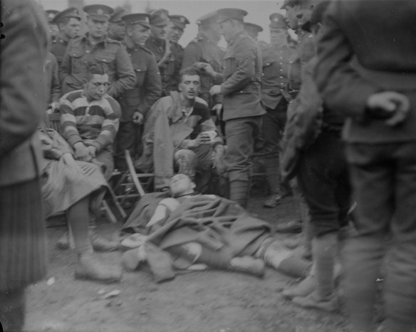 Photo noir et blanc de joueurs de rugby blessés. Un joueur assis sur une chaise reçoit des soins pour une blessure à la tête. Un deuxième joueur est étendu au sol, une couverture sur le corps. Des spectateurs se tiennent près des joueurs, derrière la ligne de côté.